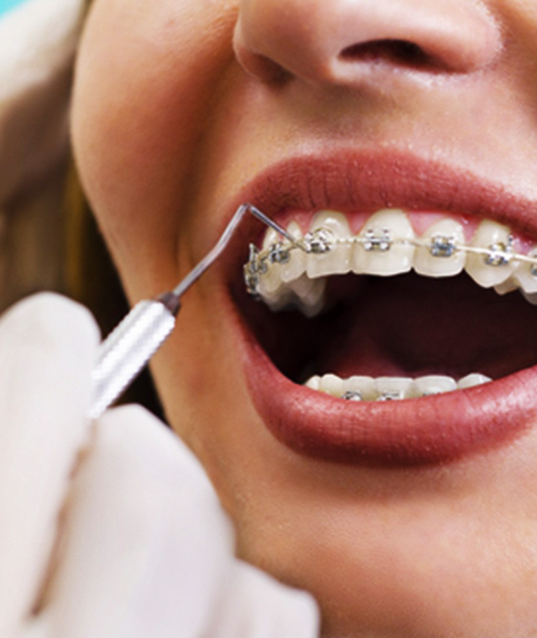 orthodontics-web